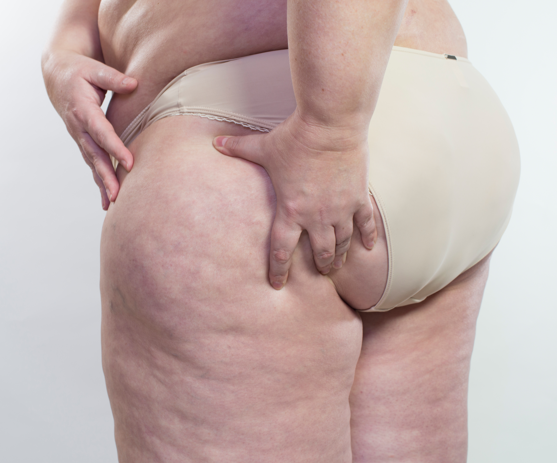 Frau zeigt ihre Cellulite